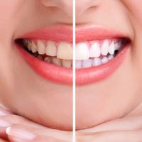 blanqueamiento dental encias blancas