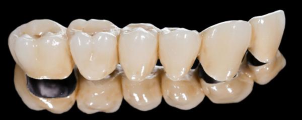 corona dental encias negras