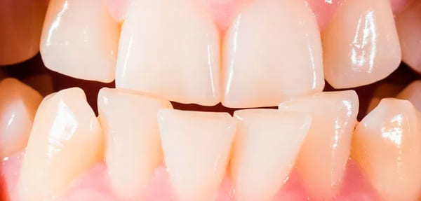 dientes mal alineados