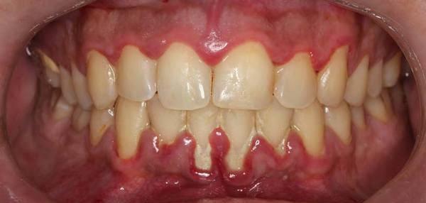 gingivitis dolor de encias