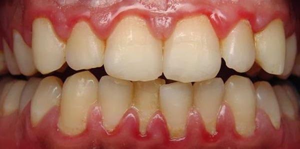 gingivitis encias moradas
