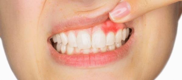 gingivitis encias rojas