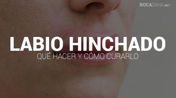 Labio Hinchado