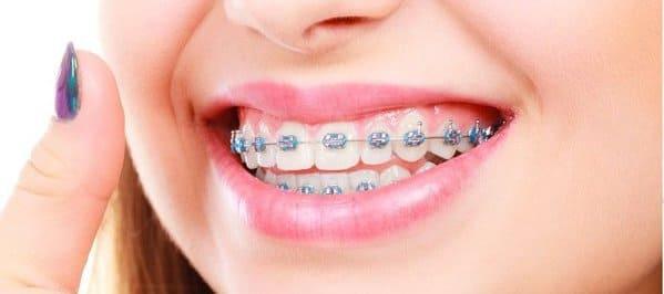 ortodoncia dolor de encias
