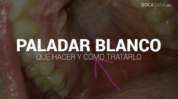 Paladar Blanco