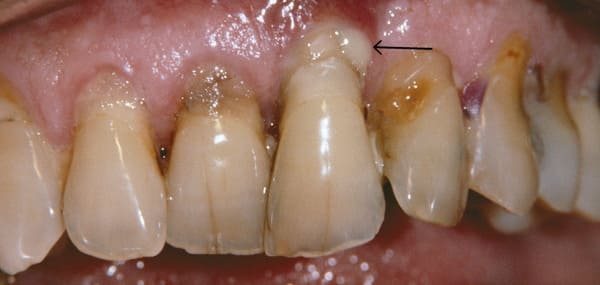 periodontitis encias moradas