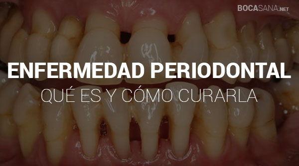 que es la enfermedad periodontal y como curarla