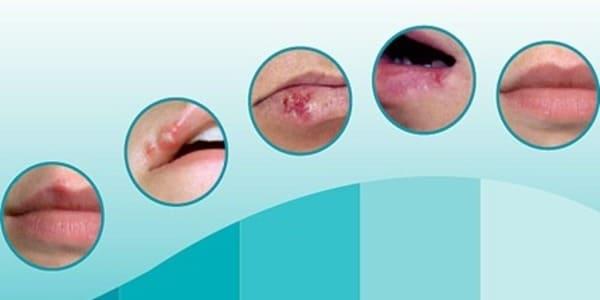 etapas del herpes