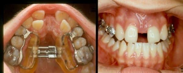 expansor maxilar mordida cruzada