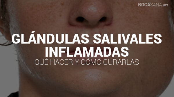 glandulas salivales inflamadas