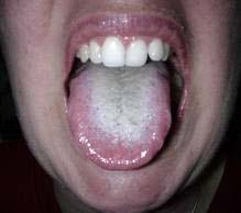 consecuencias de tener la lengua sucia