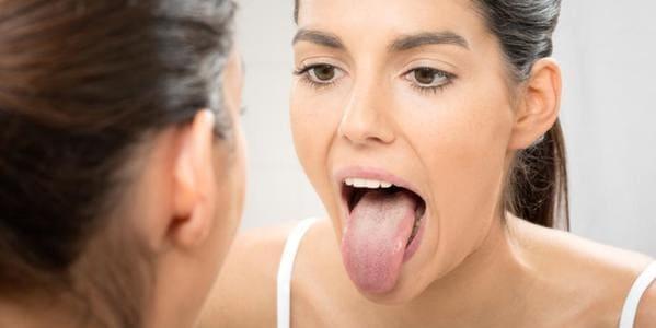 qué son los tonsilolitos