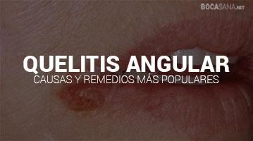 QUELITIS ANGULAR