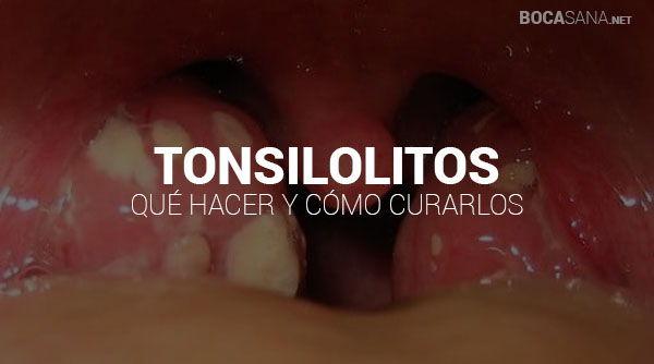 Amigdalitis aguda con placas de pus en ingles