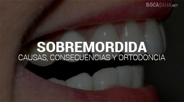 SOBREMORDIDA