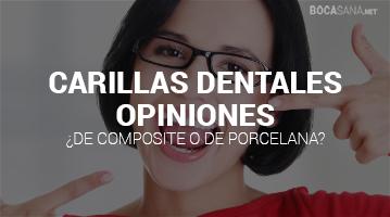 Carillas Dentales Opiniones