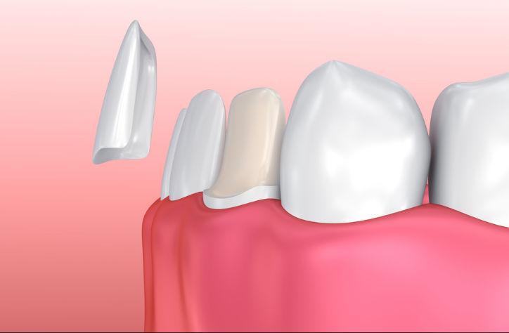 opiniones carillas dentales